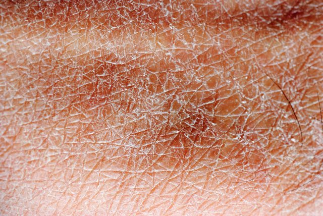 Dry Skin and Hypothyroidism