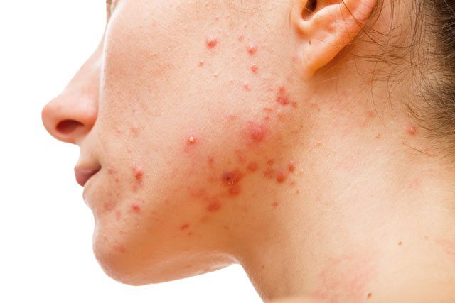 probiotics heal acne