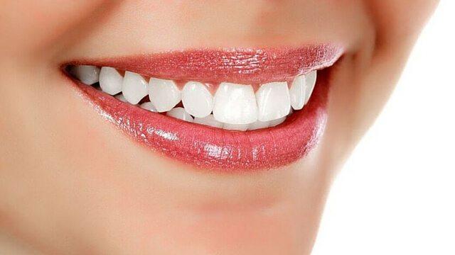 bentonite clay oral health